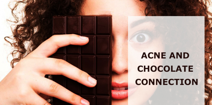 ACNE AND CHOCOLATE CONNECTION